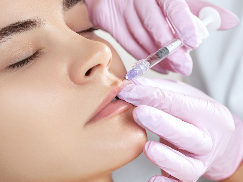 Dermal Filler Lip Injection Service