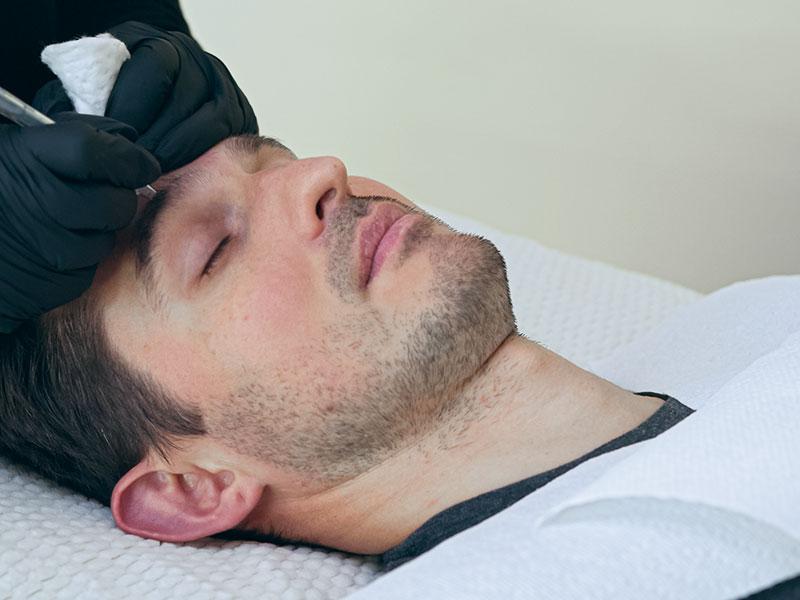 Micropigmentation Treatment On Man