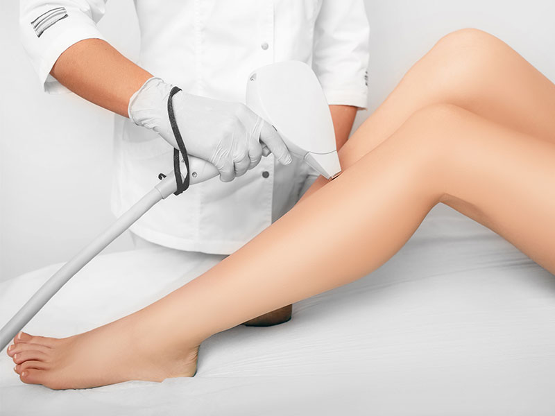 Laser Hair Removal Technology
