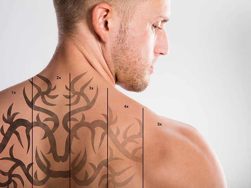 Laser Tattoo Removal Steps