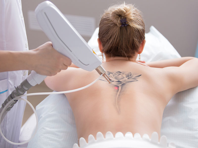 Laser Tattoo Removal Training